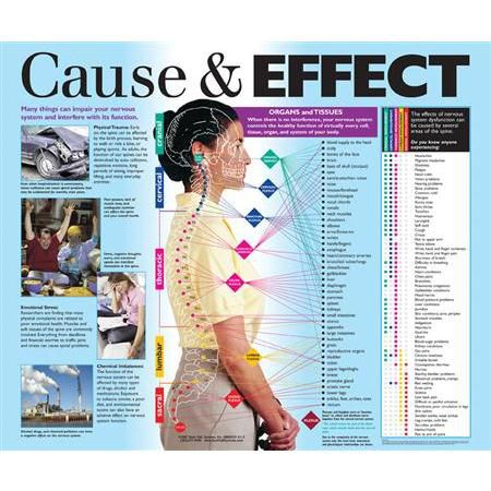 Cause Amp Effect Nervous System Laminated Poster