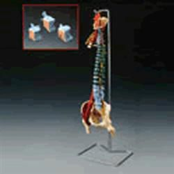Muscle Spine With Disorders With Stand