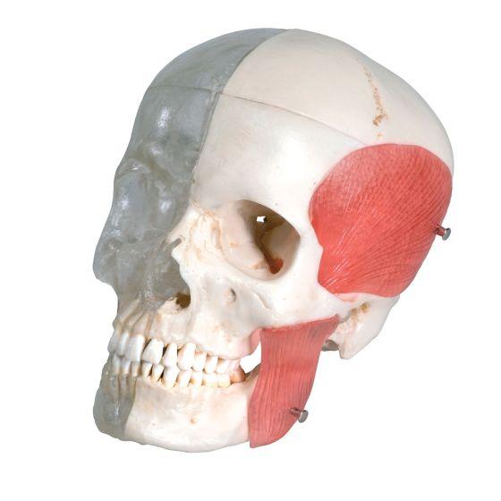Combined Transparent/Bony Skull-8 Part