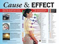 Cause & Effect Nervous System Laminated Poster