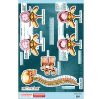 "BodyPartChart™ Intervertebral Disc Injuries 25"" x 35"""